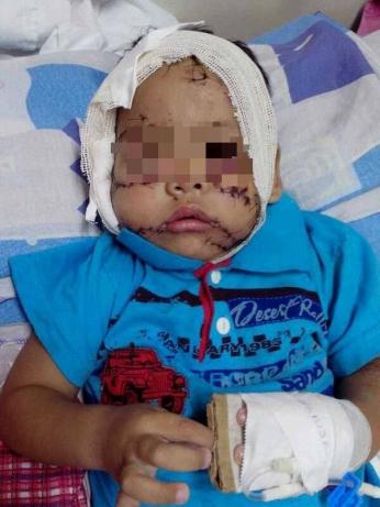Fato ocorreu no Estado da Bahia, mas criança foi trazida para a capital sergipana. (Foto: André Múmia)