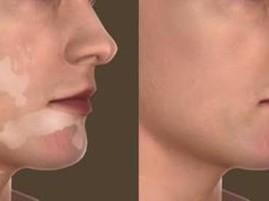 Vitiligo: problema que pode ser contornado . (Foto: reprodução/Net)
