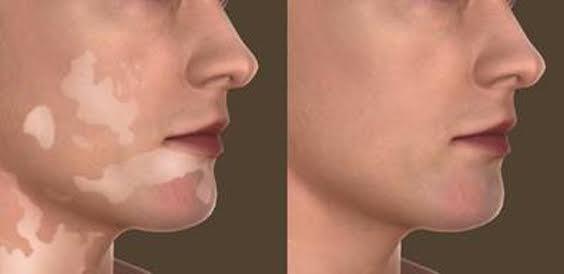 Vitiligo tem tratamento e pode ser contornado