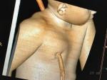 Imagem da tomografia computadorizada mostra estaca atravessada no tronco (Foto: Divulgação/HUT)