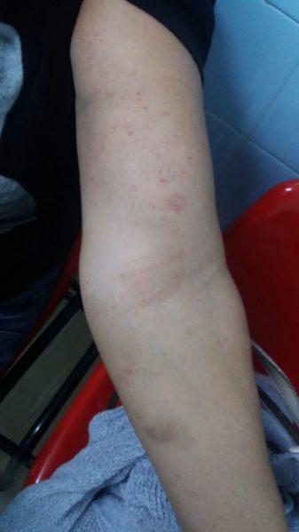 Cemar do Augusto Franco disponibiliza tratamento para pessoas alérgicas