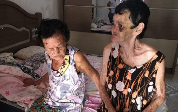 Avó e mãe da agressora foram atendidas por Conselho Tutelar após espancamento (Foto: Conselho Tutelar)