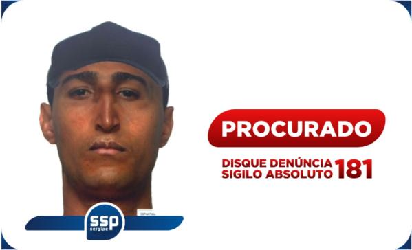 Polícia divulga retrato falado de suspeito de ter jogado café quente em rosto de vítima