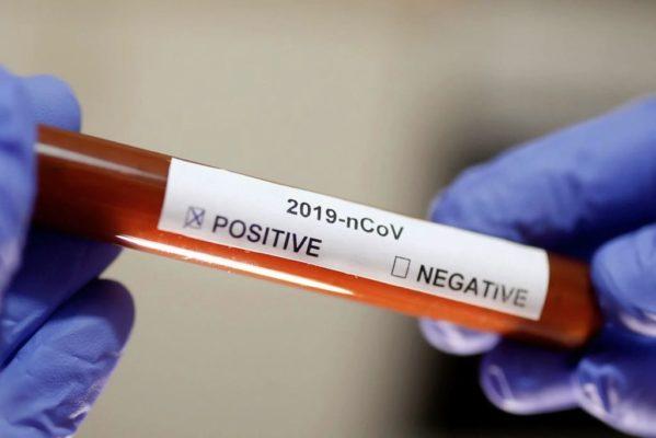 Sergipe tem 14ª morte por Coronavírus e totaliza 453 registros da doença