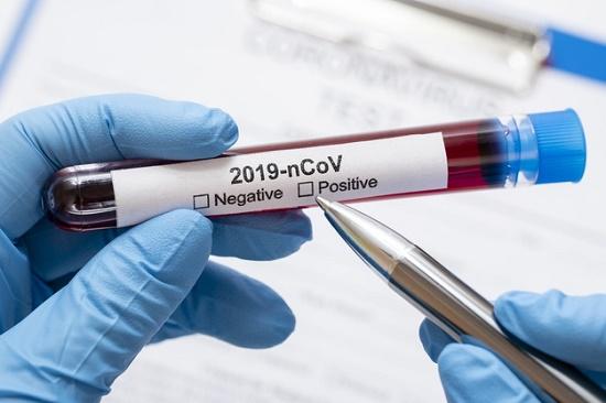 Governo recebe cerca de R$ 43 milhões para enfrentar coronavírus