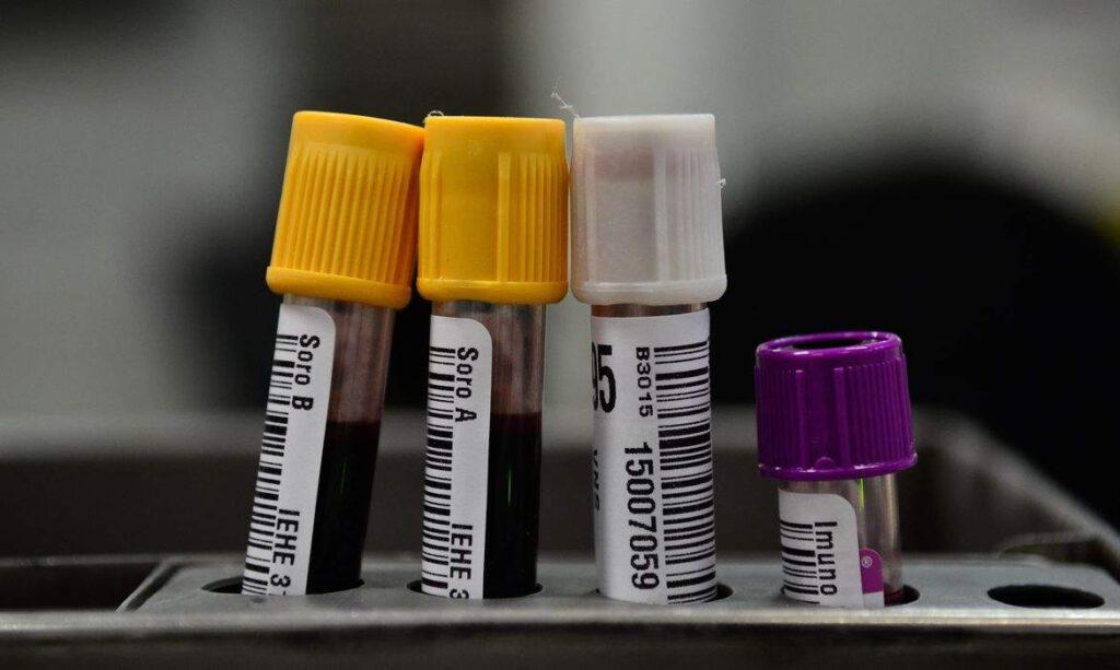Sergipe passa dos 80,9 mil casos da Covid-19 e soma 2.124 mortes pela doença